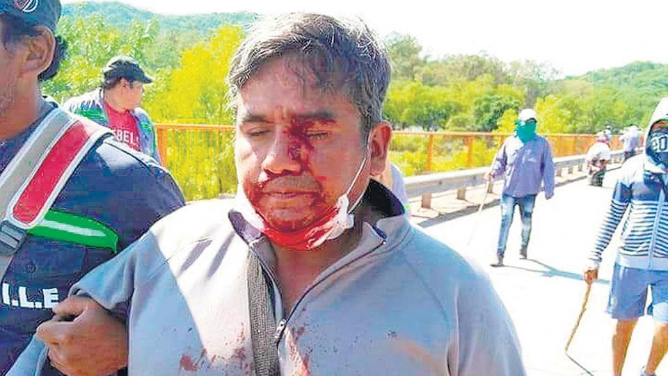 La policía provincial reprimió a los trabajadores del Ingenio La Esperanza.