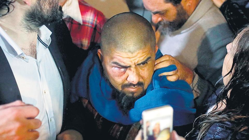 Diego Mendieta, pastor e integrante de la CTEP, recibió más de 40 trompadas en la cara.