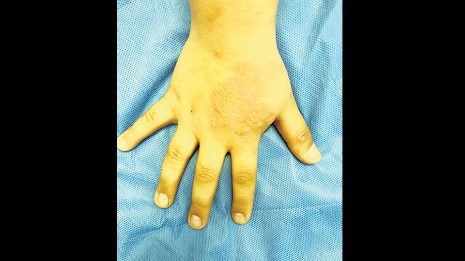 Las manchas insensibles en cualquier parte del cuerpo son un síntoma temprano de lepra.