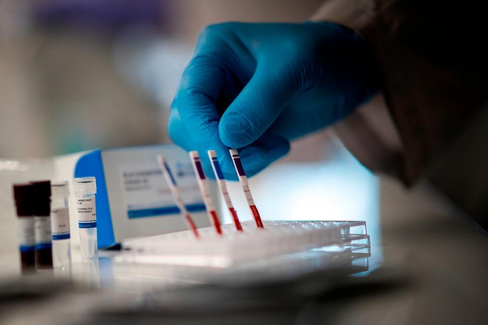 Coronavirus en Argentina: se registraron 13 nuevas muertes