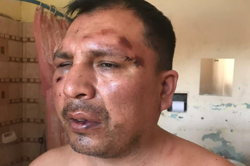 Así quedó Rodríguez tras la irrupción policial en su hogar.
