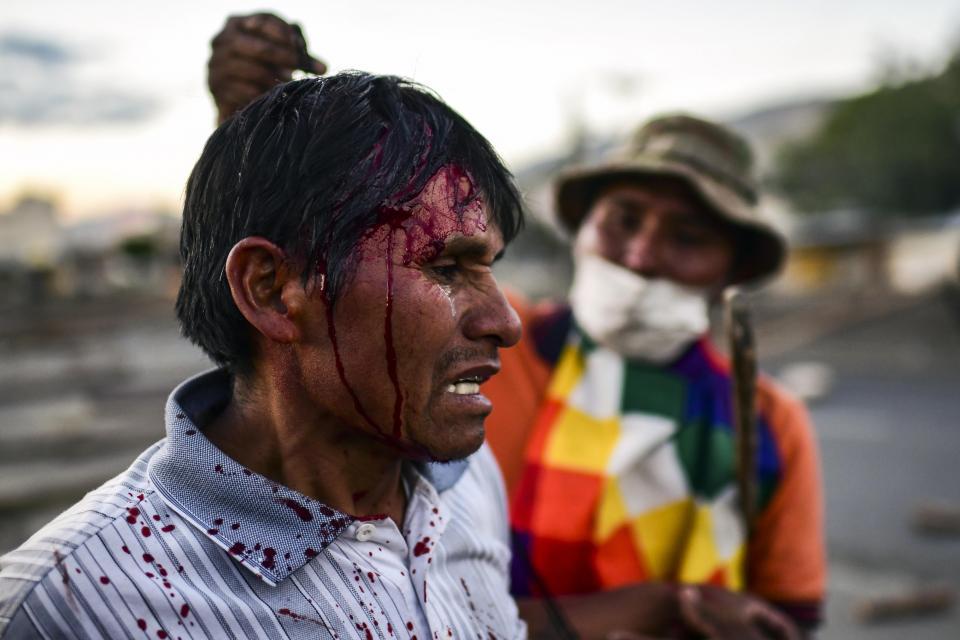 La CIDH criticó con dureza la represión del gobierno de facto de Añez.